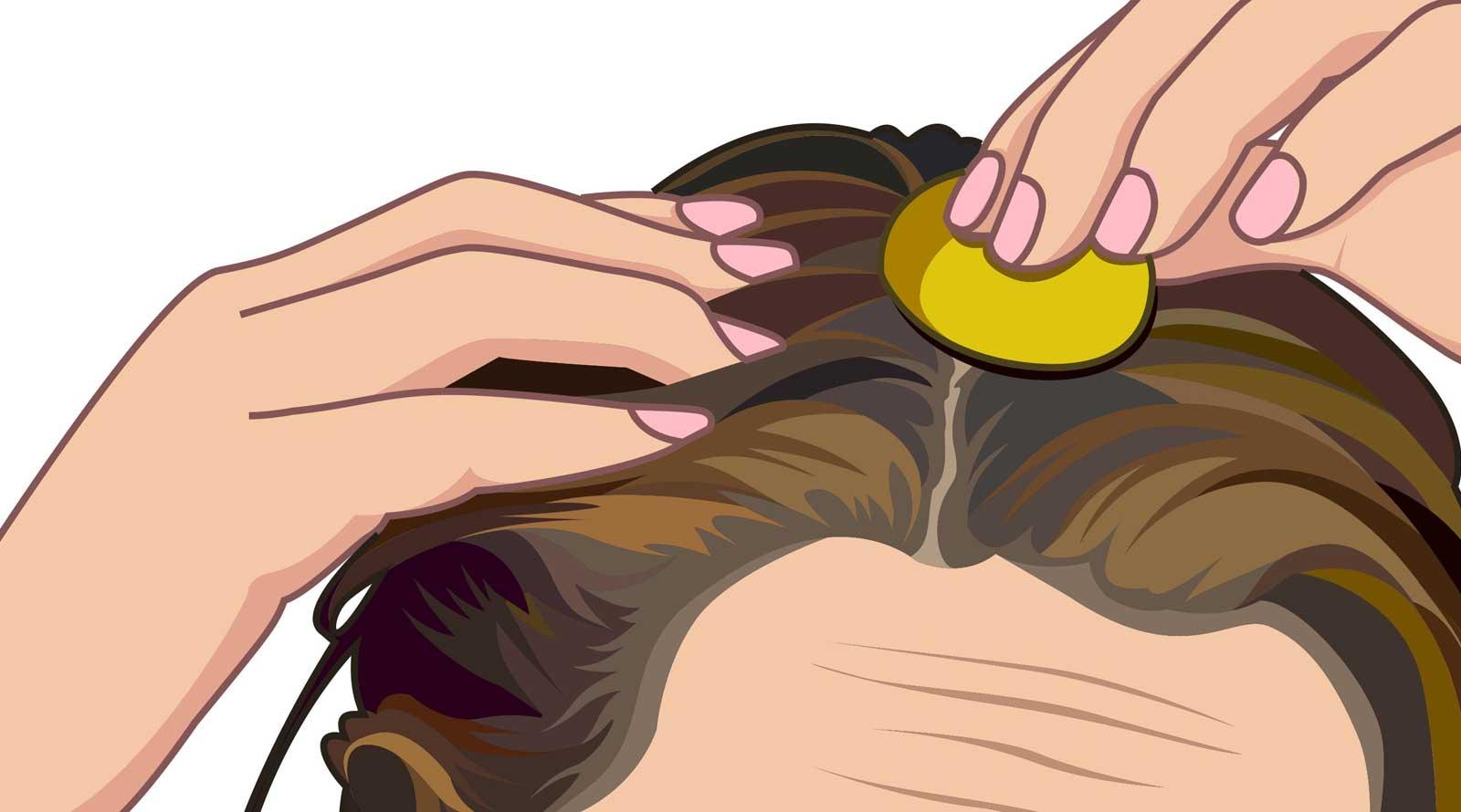 farmaci capelli topici